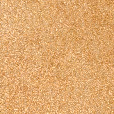 dermatologie, Hautkrebsvorsorge