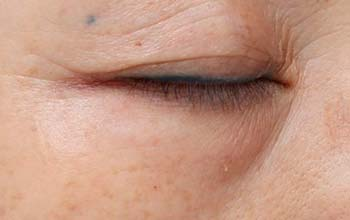 Augenfalten nach der Behandlung mit Radiofrequenz Agnes