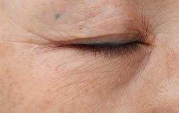 Augenfalten vor der Behandlung mit Radiofrequenz Agnes
