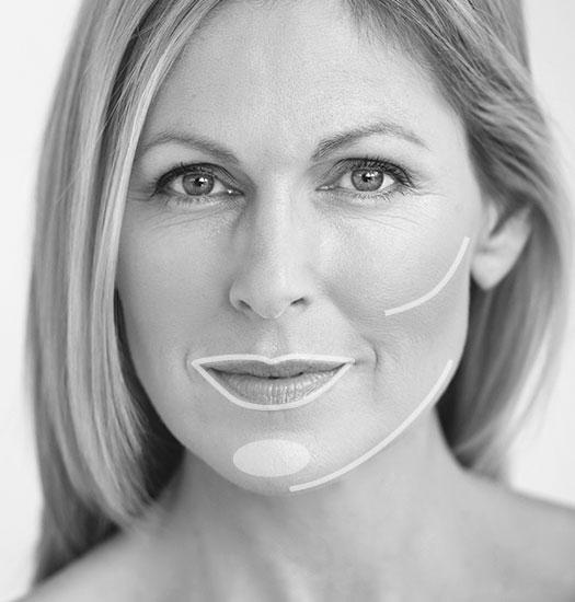Besseres Hautbild und Konturen definieren mit Hyaluron