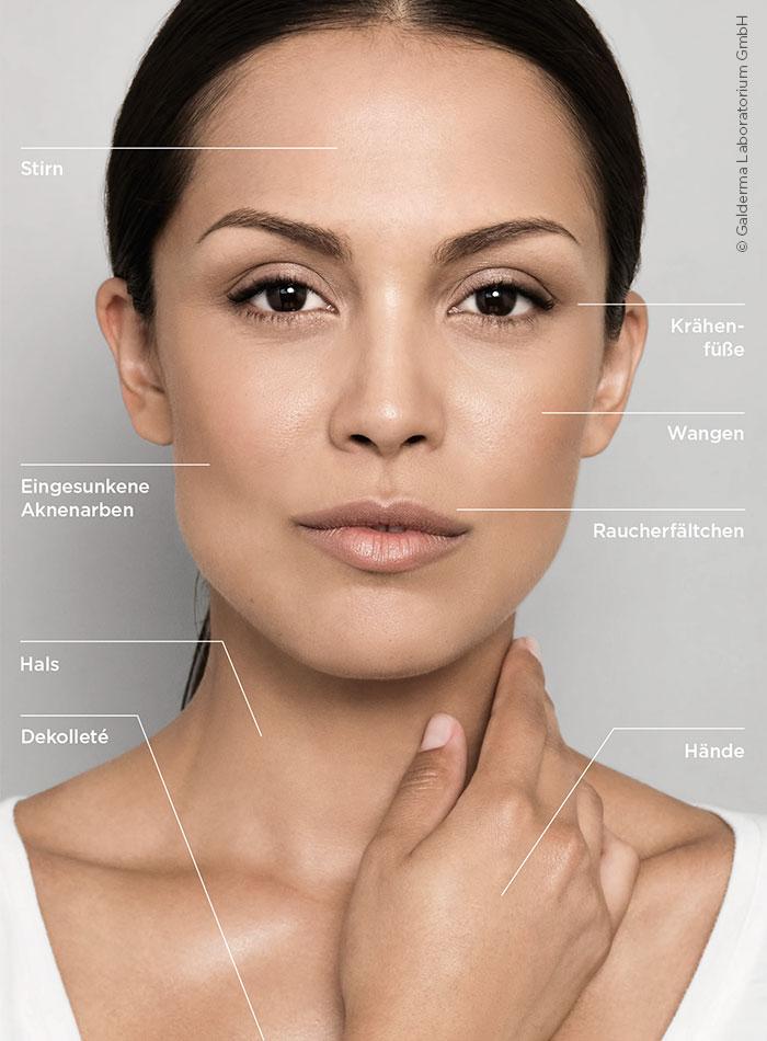 Behandlungsbereiche mit Retylane Skinbooster im MEDICAL SKIN CENTER Köln