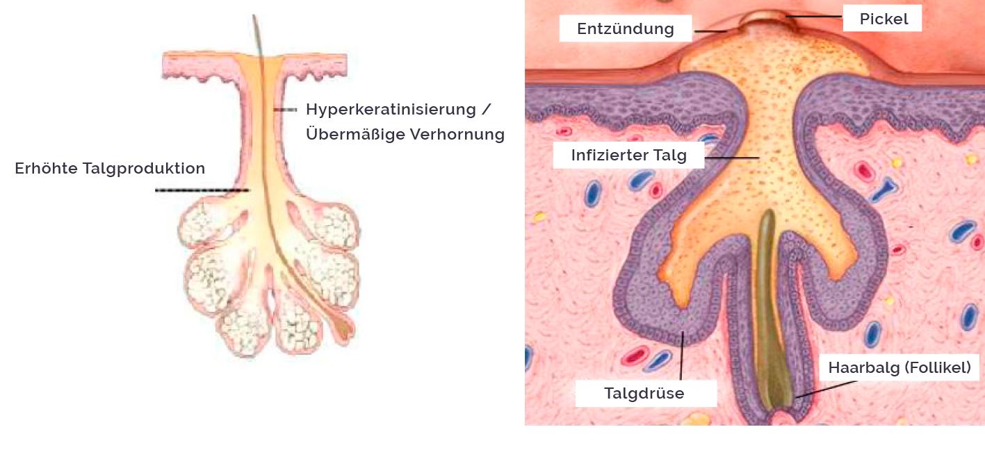 Infografik zur Entstehung von Pickeln und Akne