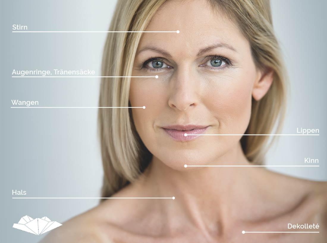 Ansicht der möglichen Bereiche der Hautverjüngung