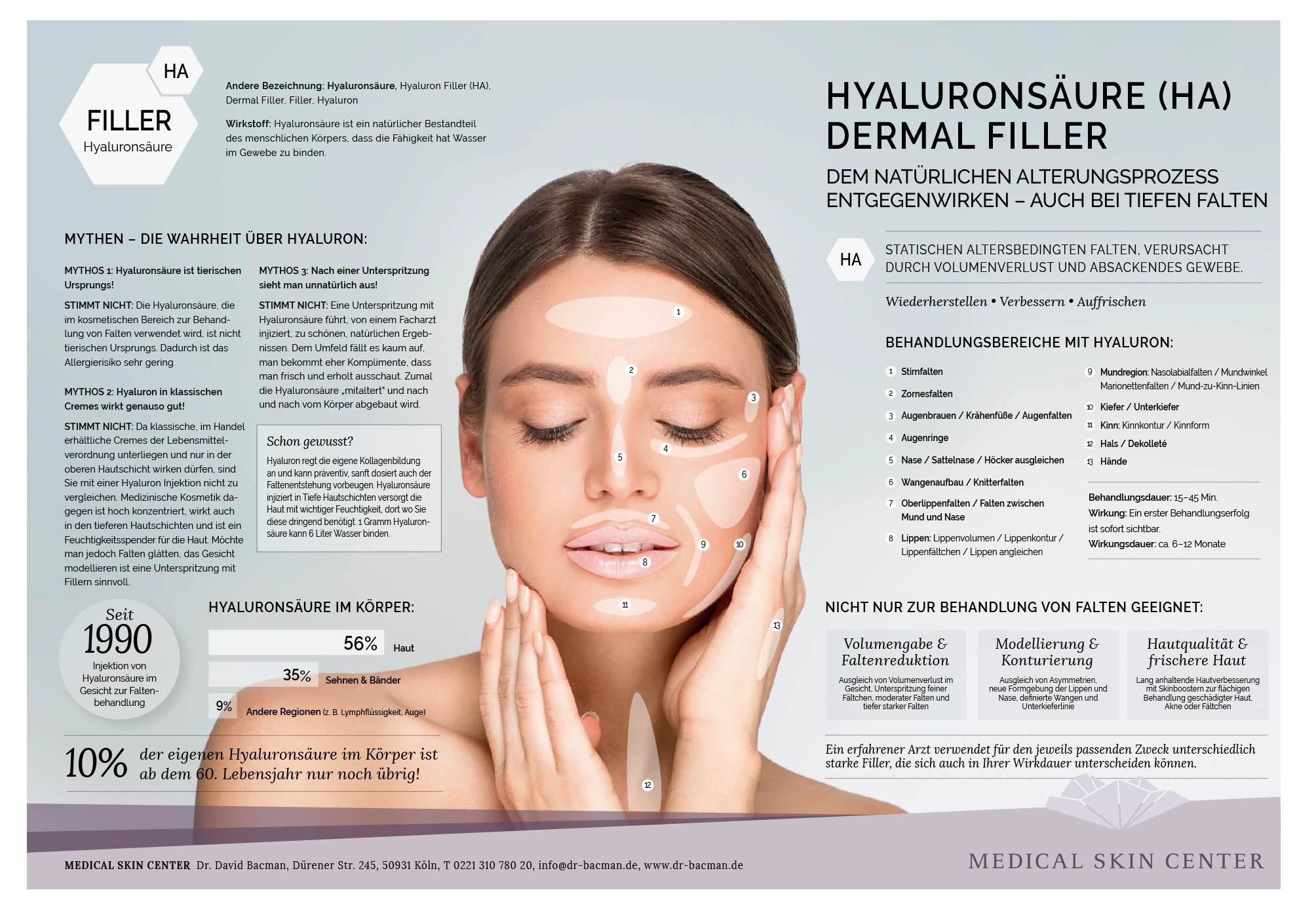 Infografik und Indikationen zu Hyaluronsäure Filler Köln Alterungsprozess
