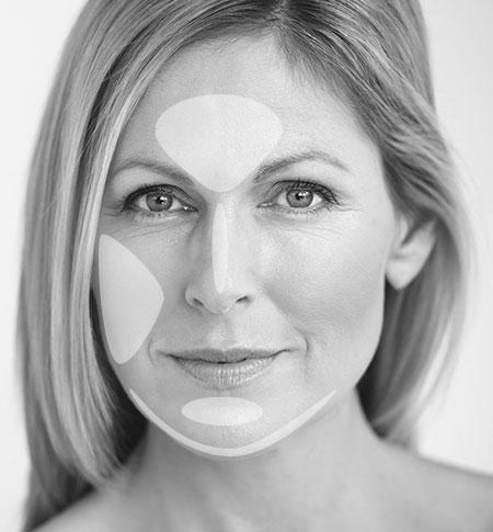 Behandlung mit Radiofrequenztherapie Agnes zur Hautverbesserung
