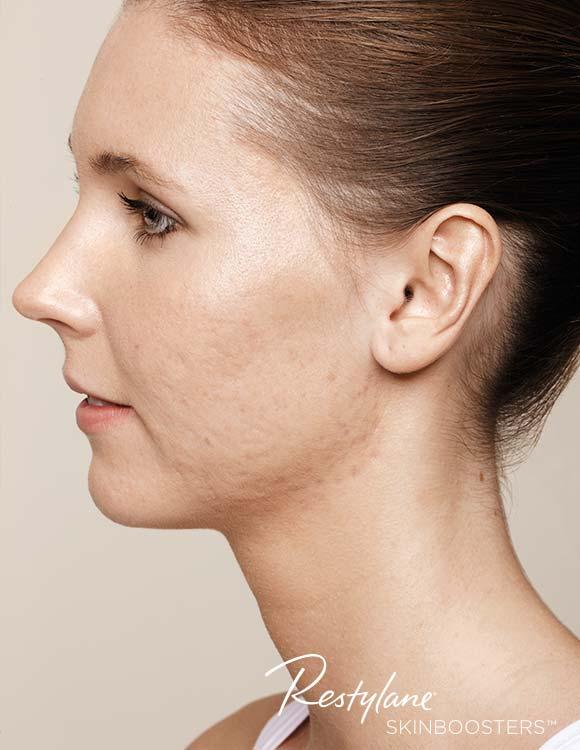 Akne vor der Behandlung mit Skinbooster