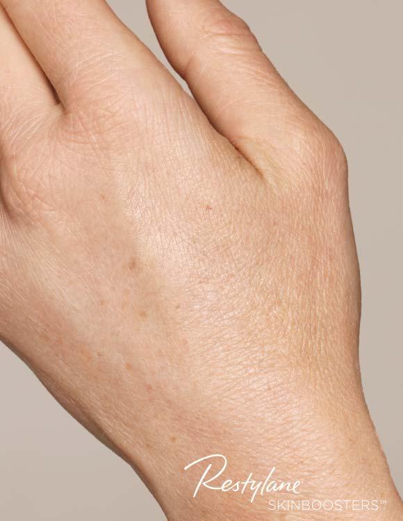 Hand nach der Behandlung mit Skinbooster