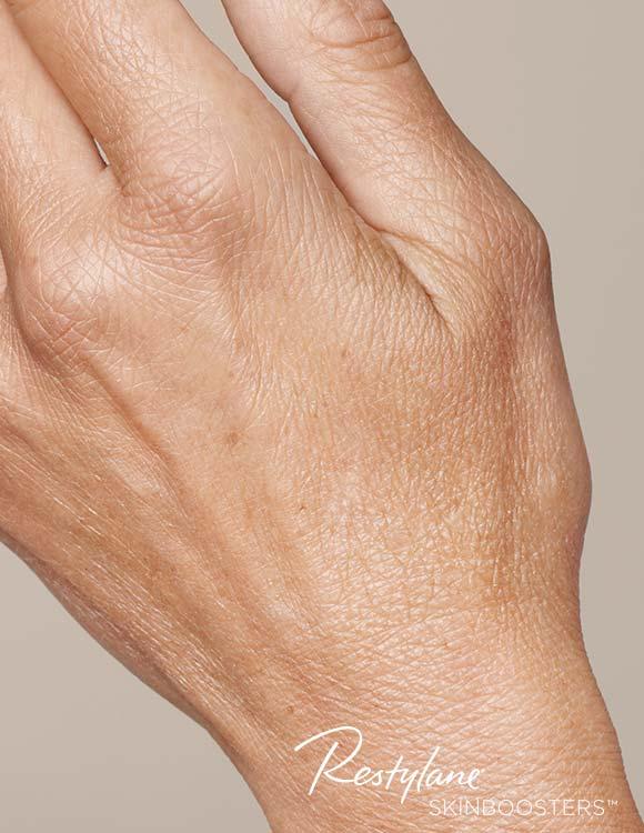 Hand vor der Behandlung mit Skinbooster