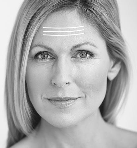 stirnfalten-unterspritzung im medical skin center köln