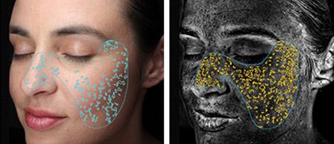 Hautanalyse zu Läsionen