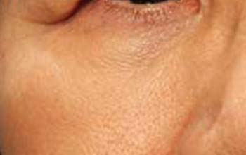 Tänensäcke nach der Behandlung mit Radiofrequenz Agnes