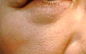 Tänensäcke vor der Behandlung mit Radiofrequenz Agnes