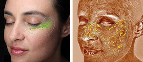 Visia Hautanalyse zur Faltendiagnose