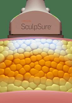 Zerstörung der Fettzellen mit Sculp Sure, Medical Skin Center Köln